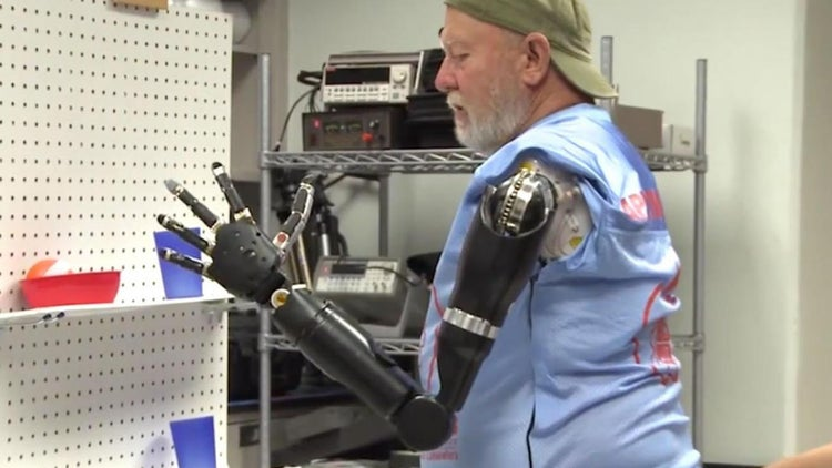 The Future Is Here: Double Amputee Is Outfitted With Mind-Controlled Prosthetic Arms