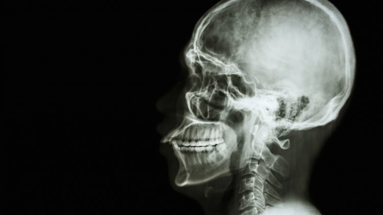 Italian Neurosurgeon Talks Of Head Transplant By 2017