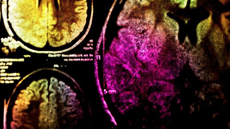 ¿Qué tipo de cerebro tienes?
