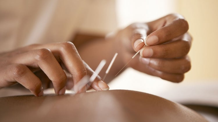 Modern Acupuncture Showing Signs of Huge Growth