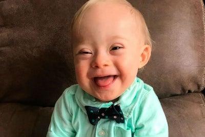 Por primera vez en su historia, un bebé con Síndrome de Down será imag...