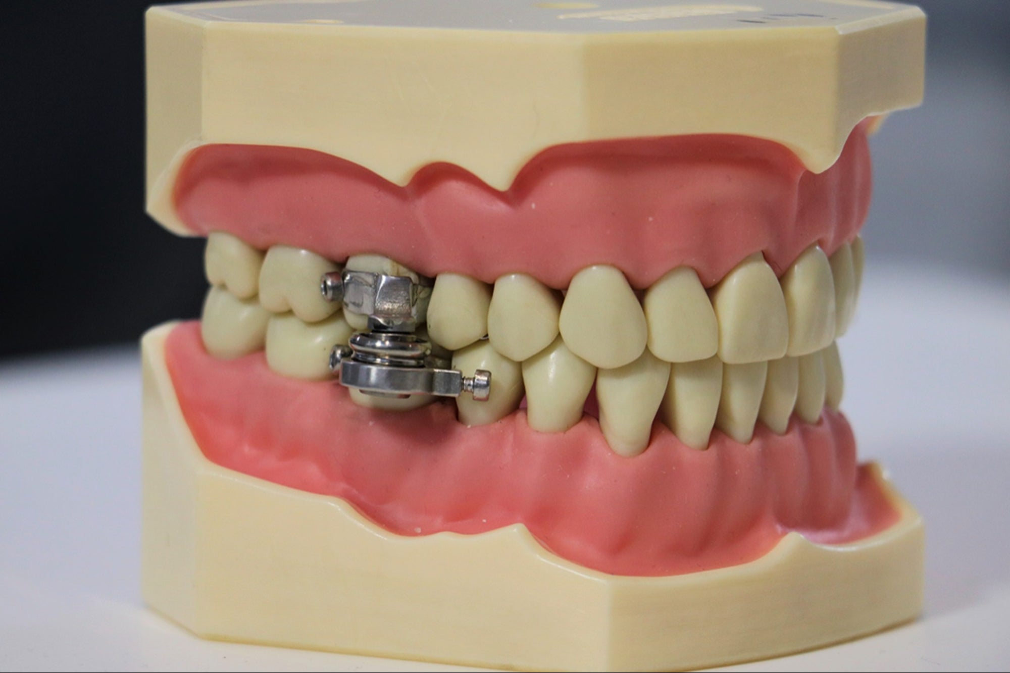 Do you want to lose weight? They present the first 'lock' for teeth thumbnail