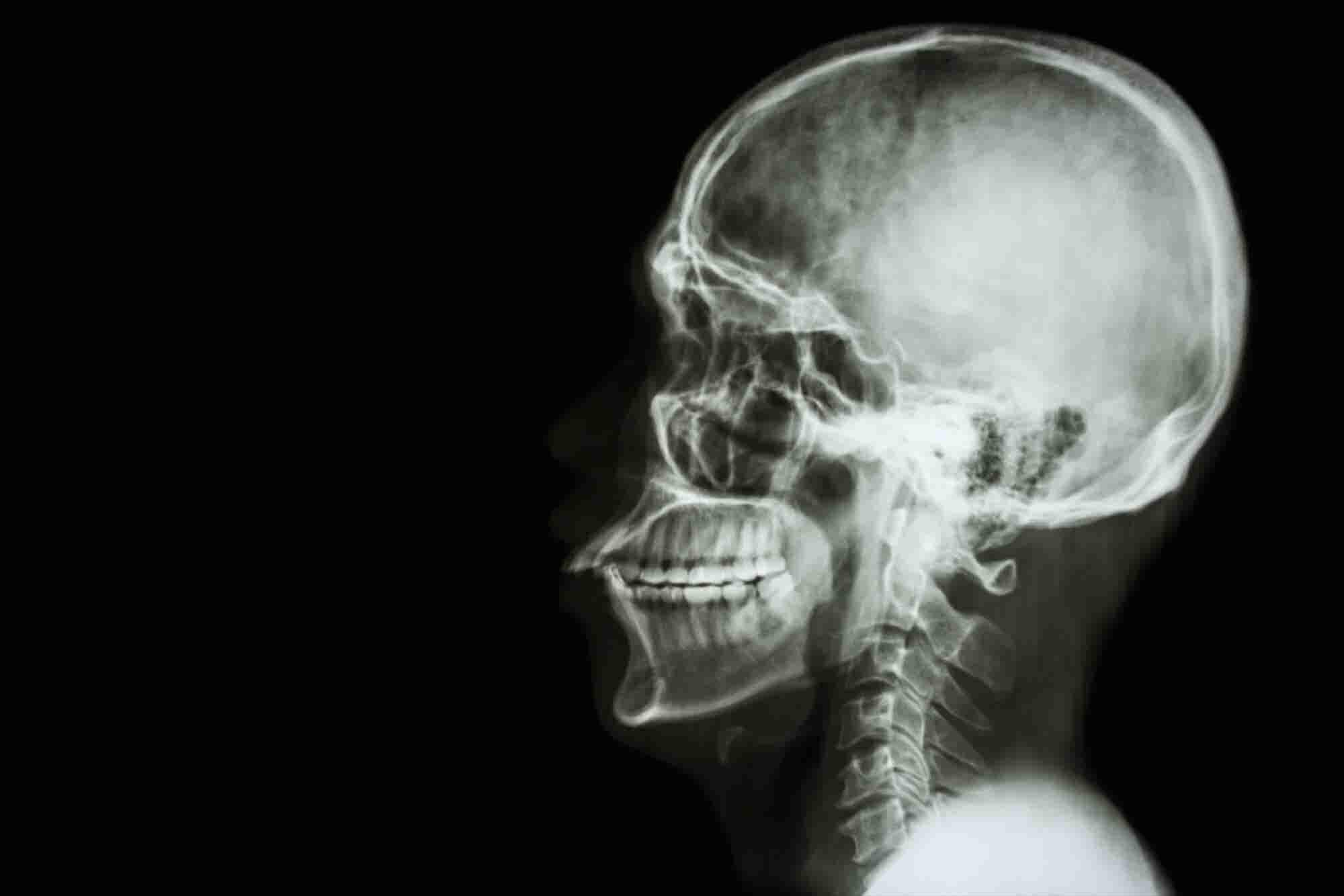 Italian Neurosurgeon Talks Of Head Transplant By 2017