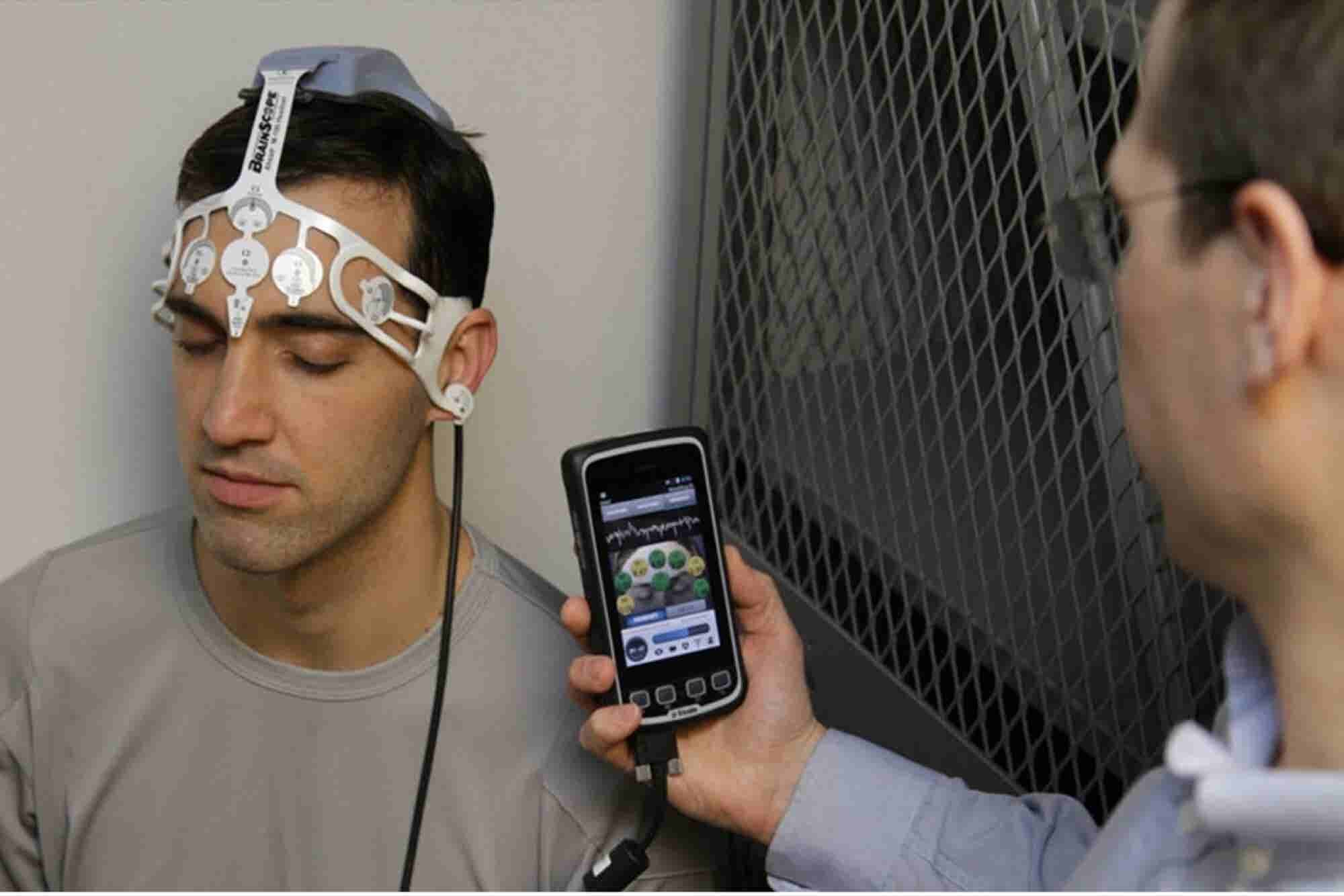 GE and NFL Team Up to Fund Research Into Concussion Detection