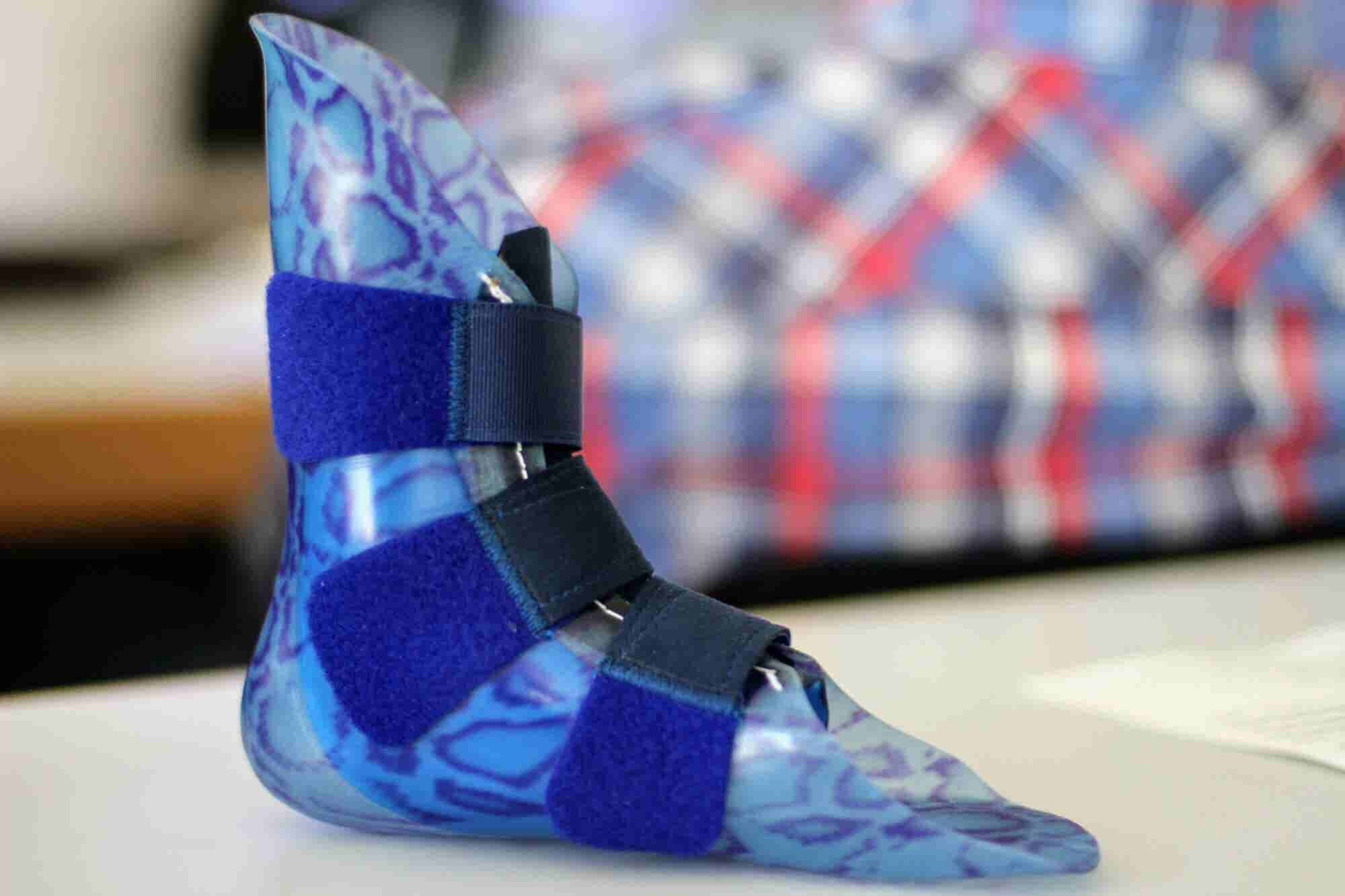 Innovating to Make Prosthetics More Accessible and Affordable