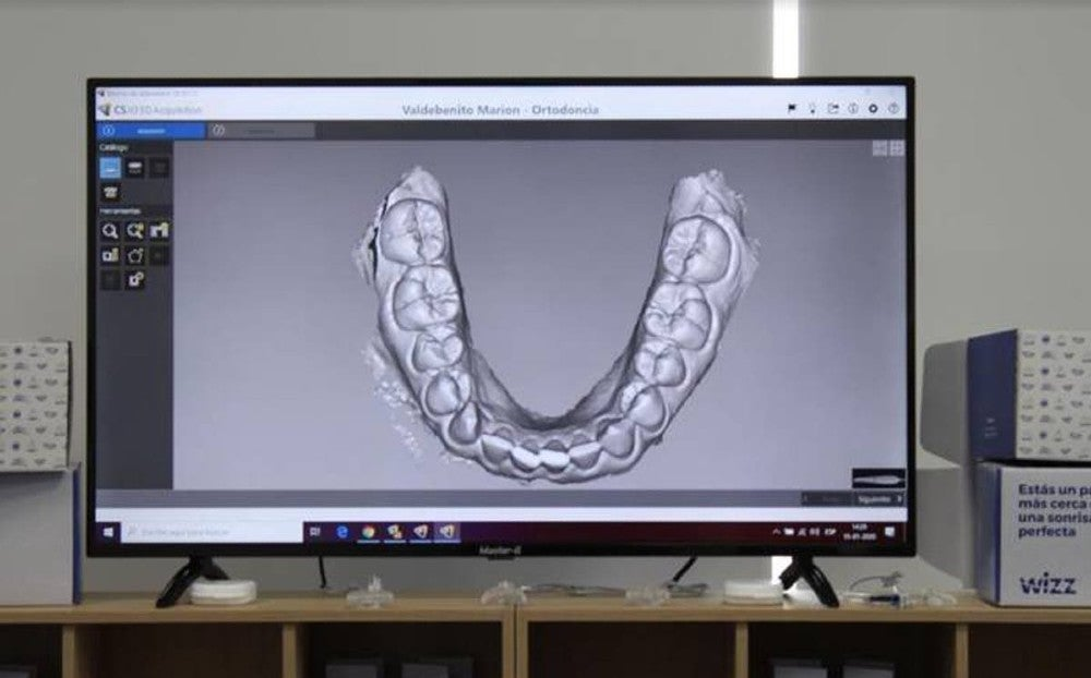 Aligner war begins? This Chilean startup Wizz seeks to consolidate in the Mexican market with low cost invisible orthodontics