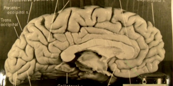 His brain was illegally removed from his body and then lost for 50 years.
