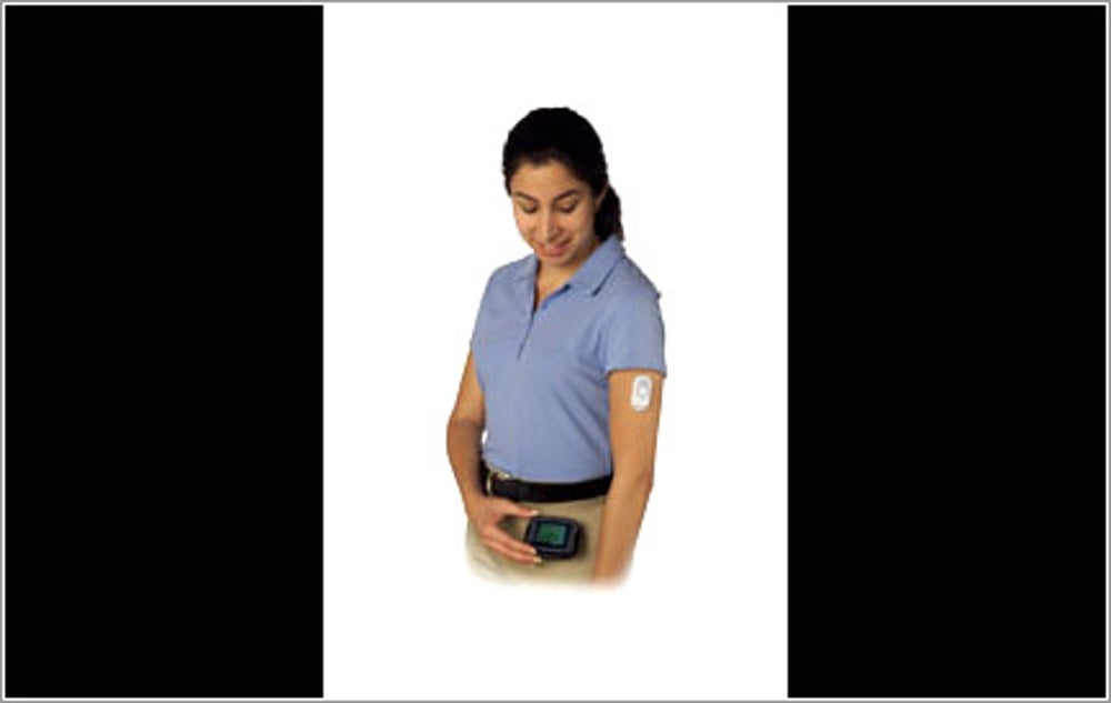 FreeStyle Navigator Continuous Glucose Monitoring System